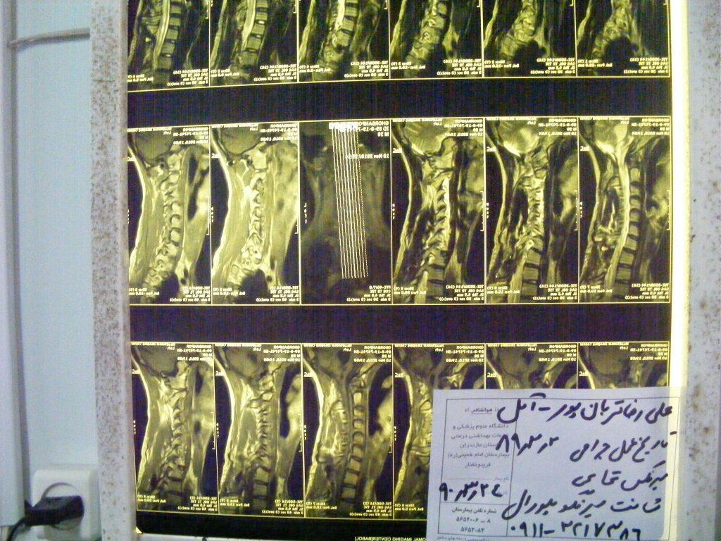 بیمار علیرضا قربانپور - پزشک: دکتر مجید خسروی
