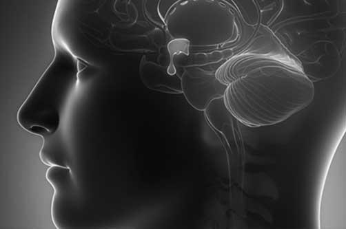 جراحی آندوسکوپی مغز