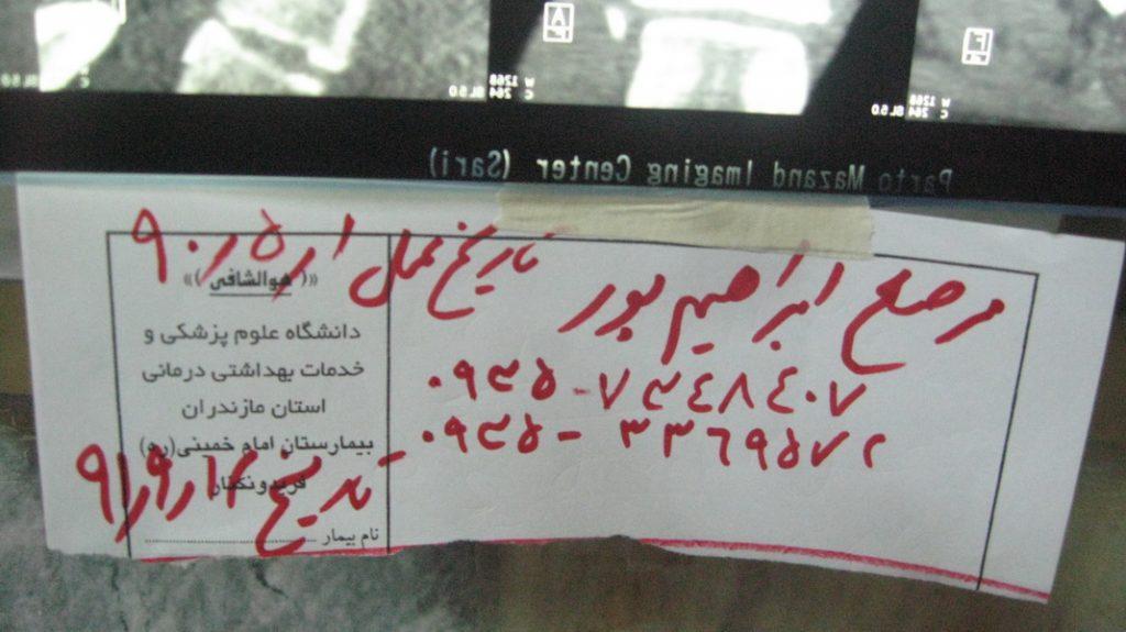 بیمار آقای ابراهیم پور - تاریخ عمل سال 90