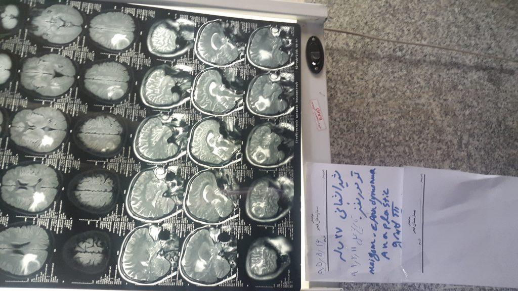 نمونه ای از عکس و فیلم های عمل موفق خانم شیدا شعبانی