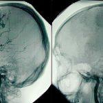 مرگ مغزی