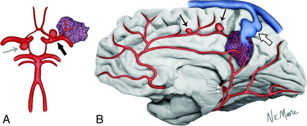 آنوریسم مغزی AVM مغزی