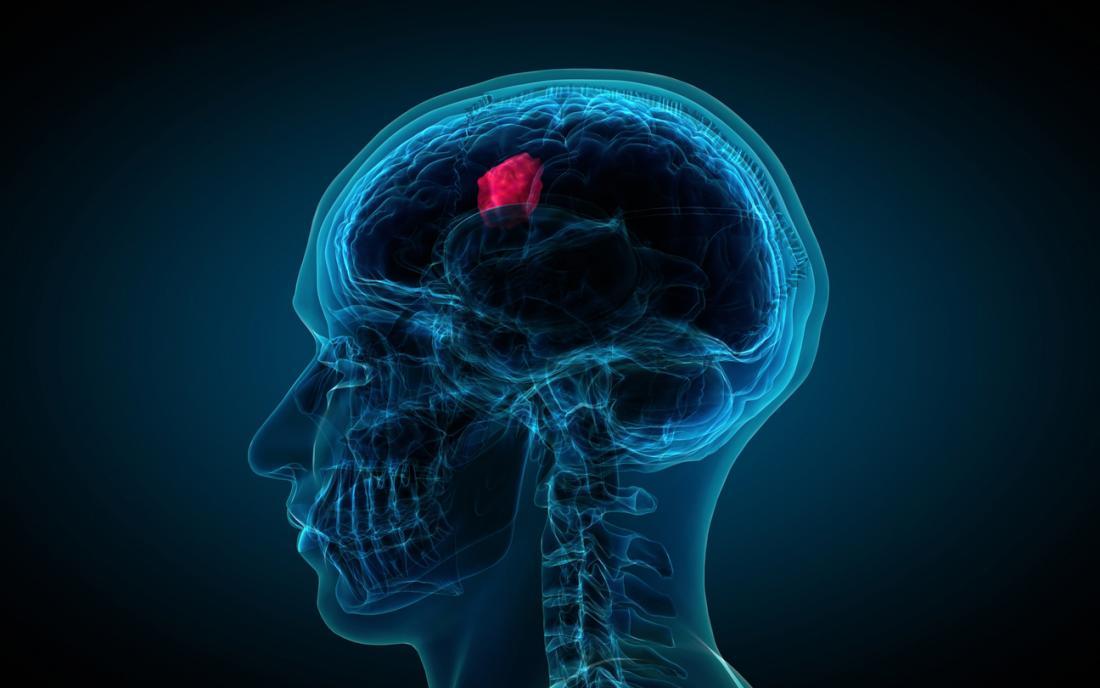 تـومور مغزی